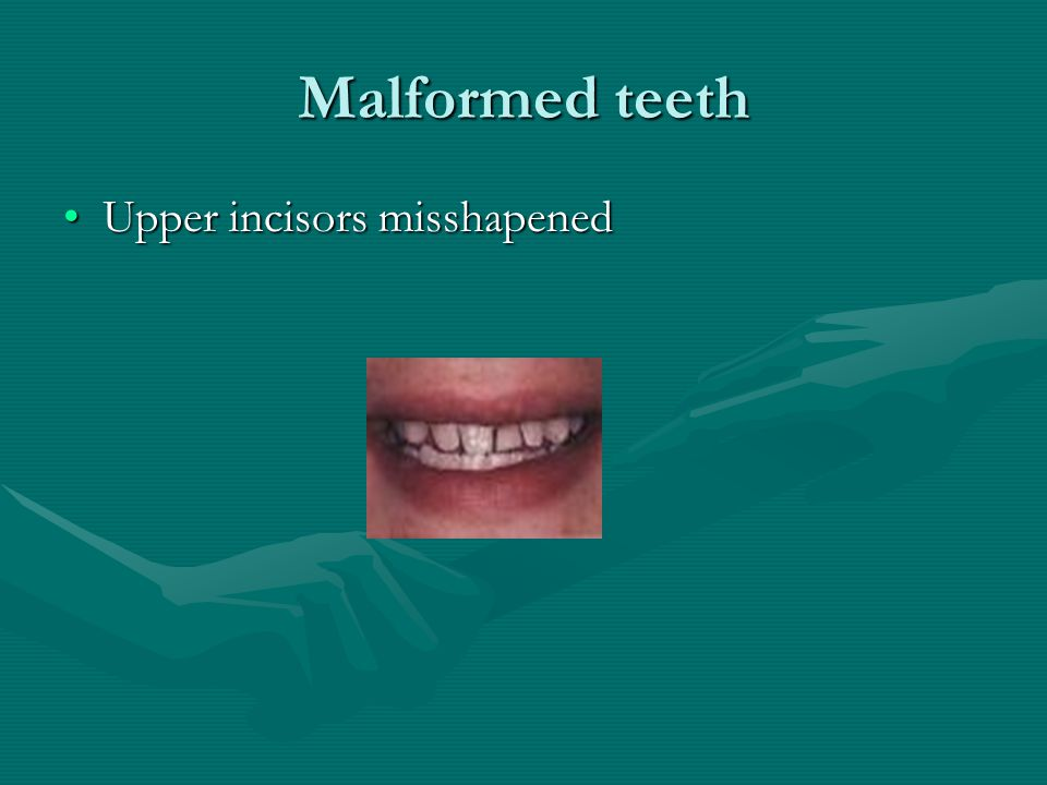 Malformed teeth Upper incisors misshapened
