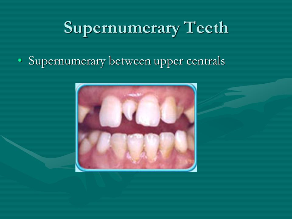 Supernumerary Teeth Supernumerary between upper centrals