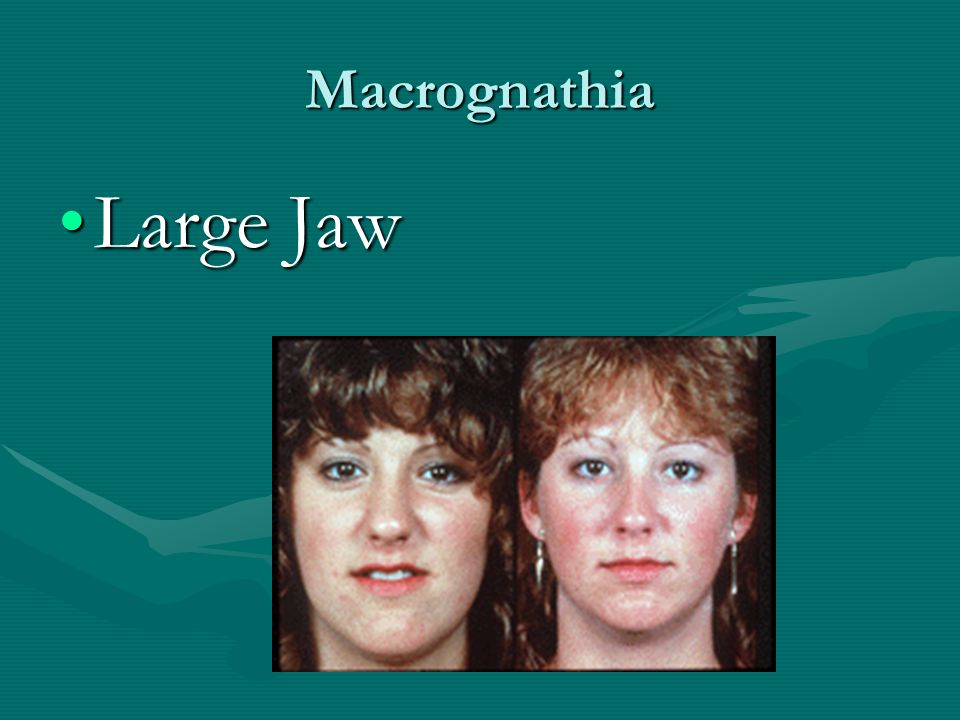 Macrognathia Large Jaw