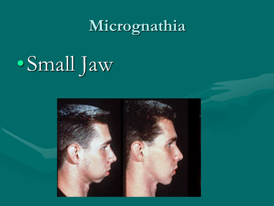 Micrognathia Small Jaw