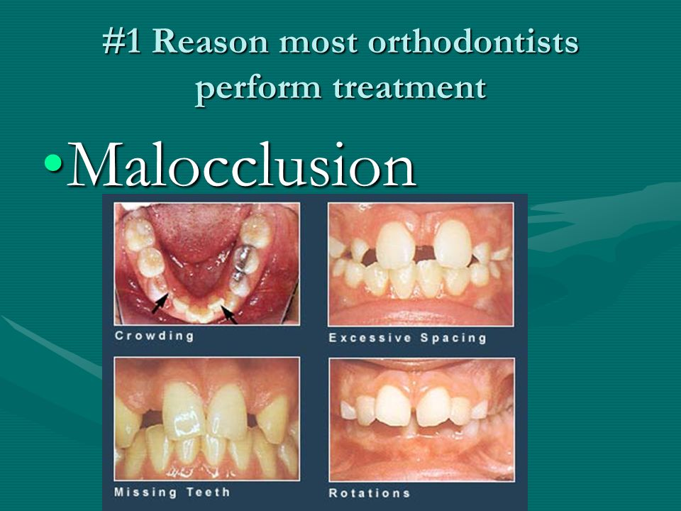 #1 Reason most orthodontists perform treatment