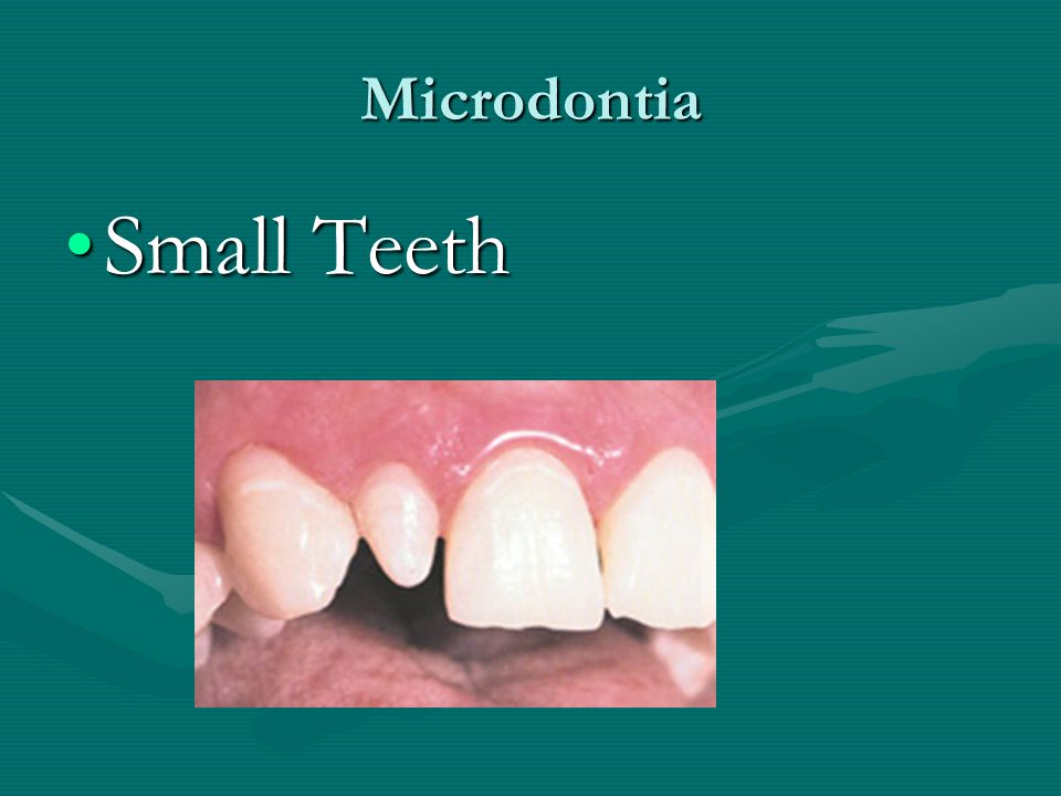 Microdontia Small Teeth