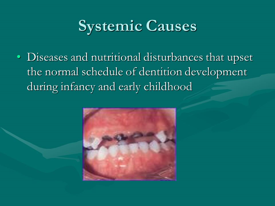 Systemic Causes Diseases and nutritional disturbances that upset the normal schedule of dentition development during infancy and early childhood.