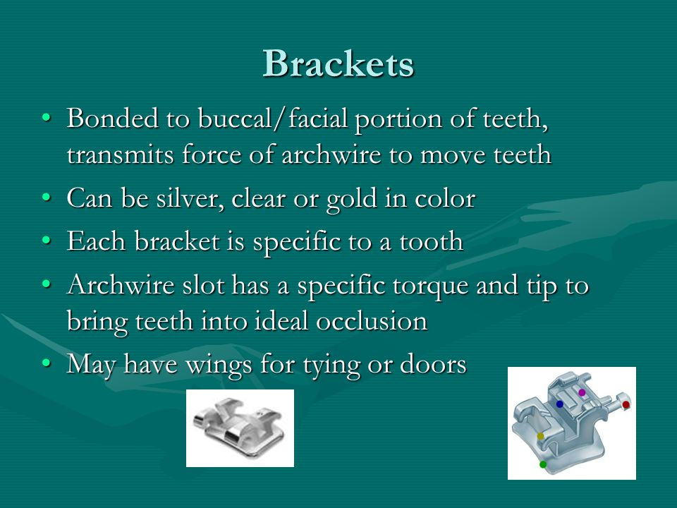Brackets Bonded to buccal/facial portion of teeth, transmits force of archwire to move teeth. Can be silver, clear or gold in color.