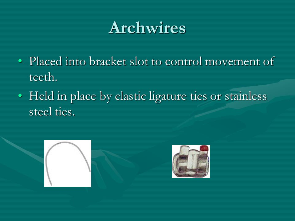 Archwires Placed into bracket slot to control movement of teeth.
