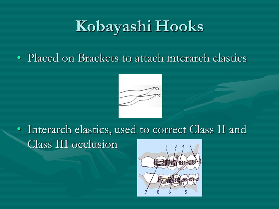 Kobayashi Hooks Placed on Brackets to attach interarch elastics