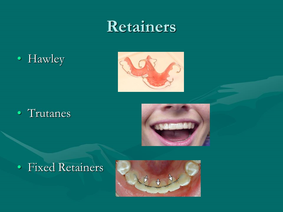 Retainers Hawley Trutanes Fixed Retainers