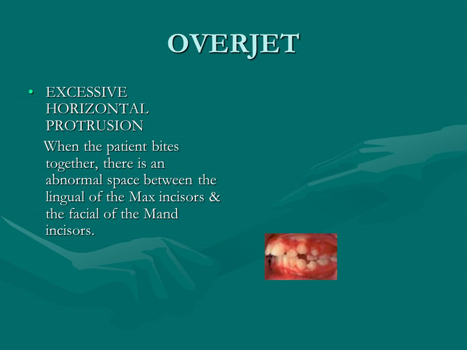 OVERJET EXCESSIVE HORIZONTAL PROTRUSION