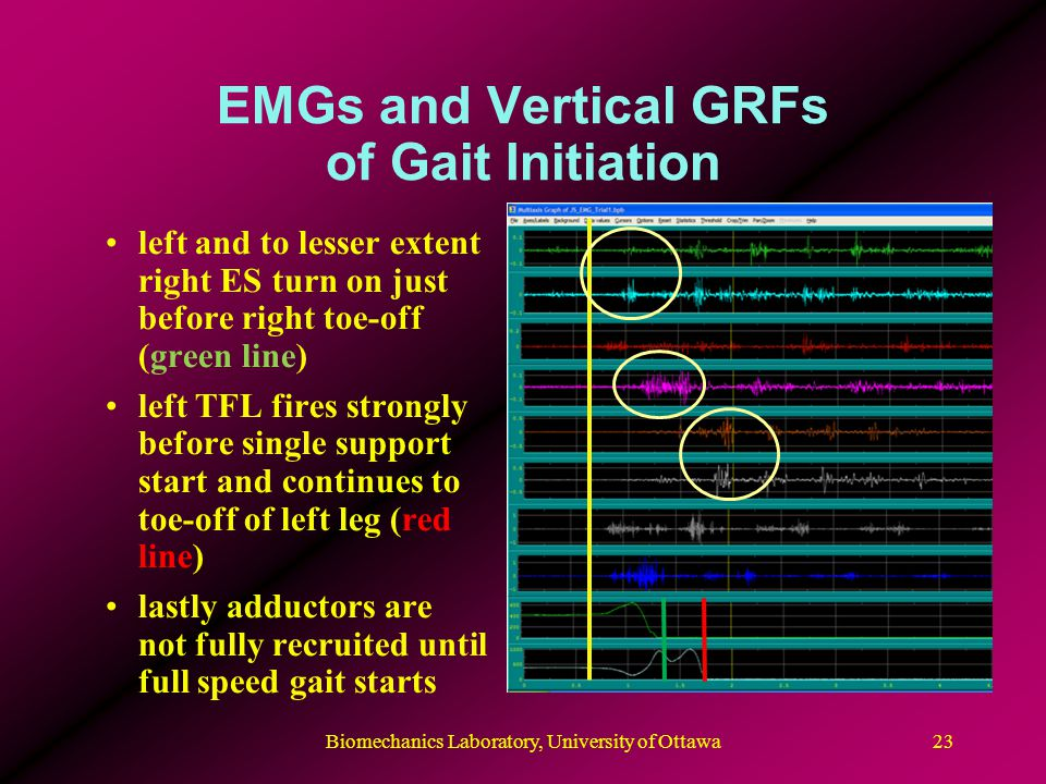 EMGs and Vertical GRFs of Gait Initiation