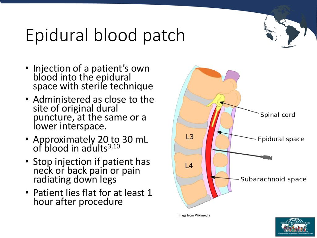 Image result for blood patch