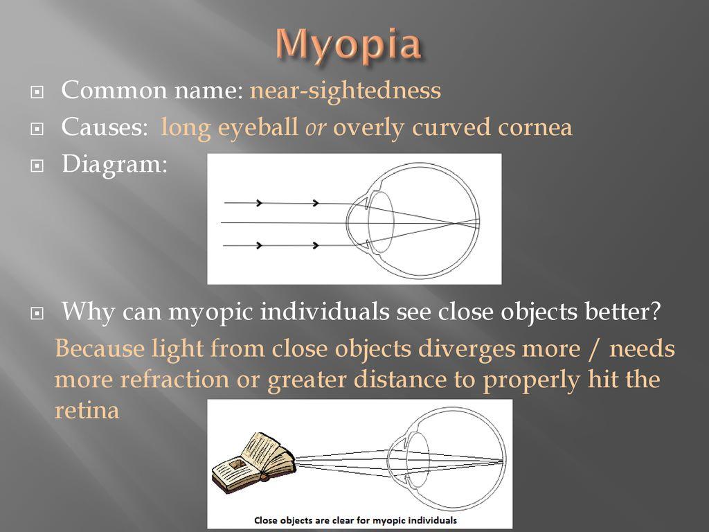 myopia hyperopia and astigmatism ppt)