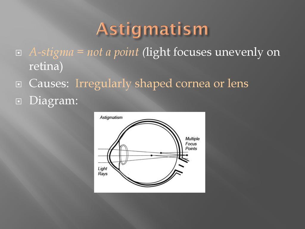 myopia hyperopia and astigmatism ppt Restaurarea vederii Bragg