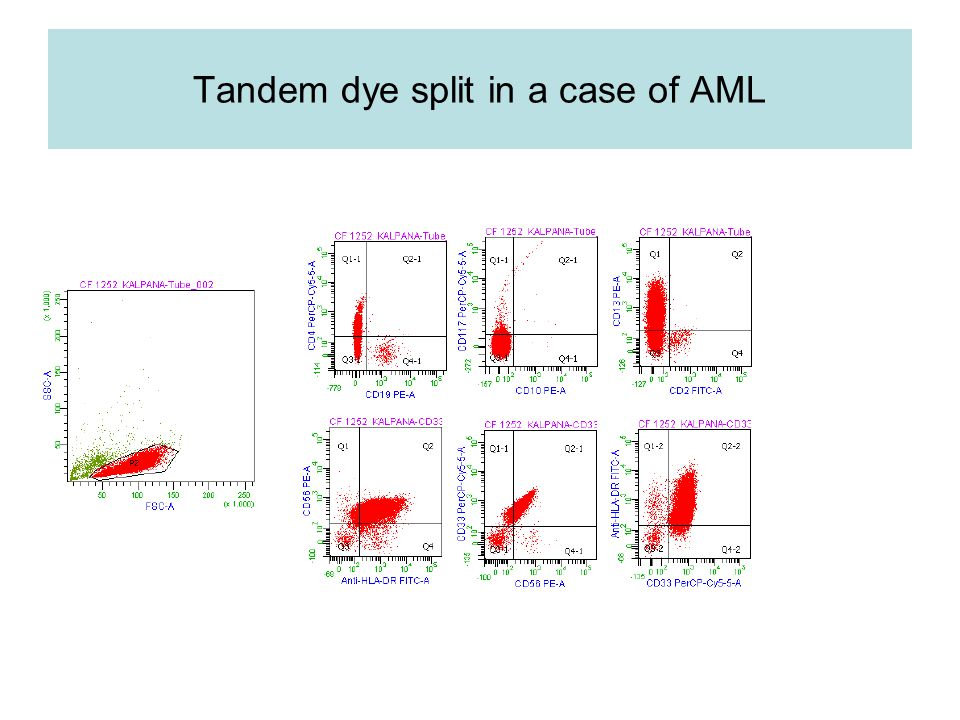 Tandem dye split in a case of AML