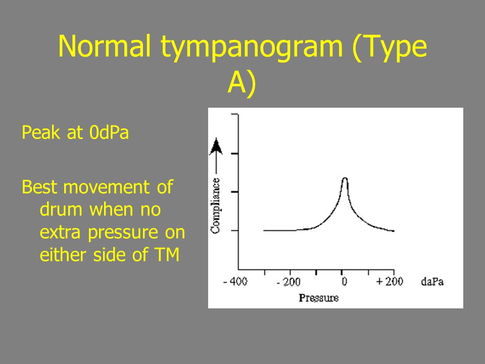 Normal tympanogram (Type A)