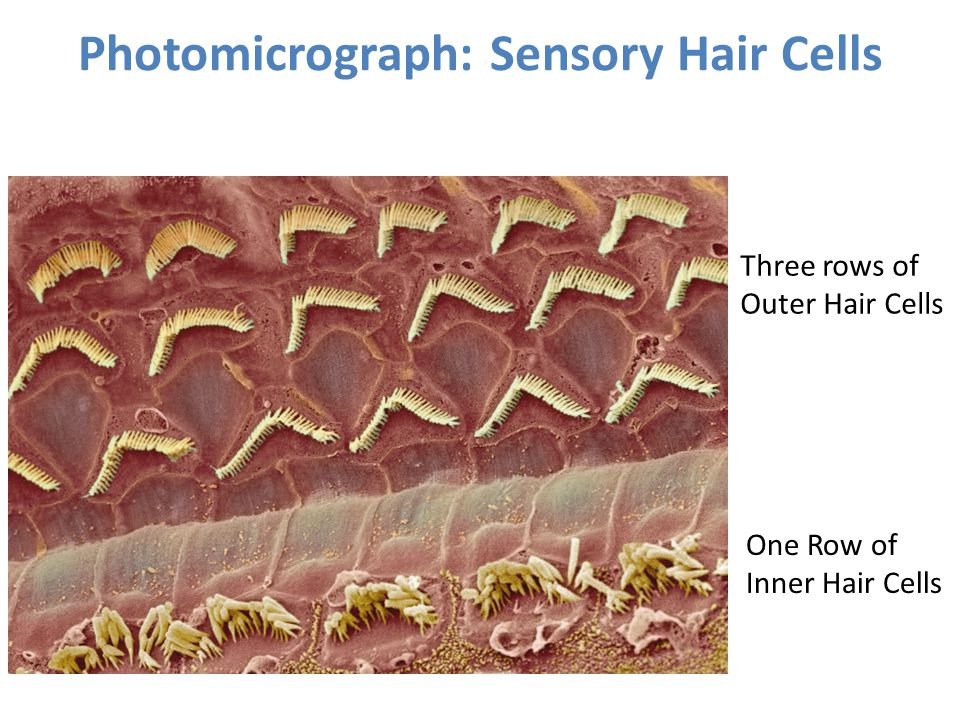 Photomicrograph: Sensory Hair Cells
