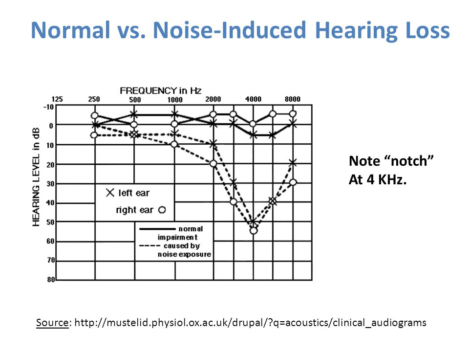 Normal vs. Noise-Induced Hearing Loss