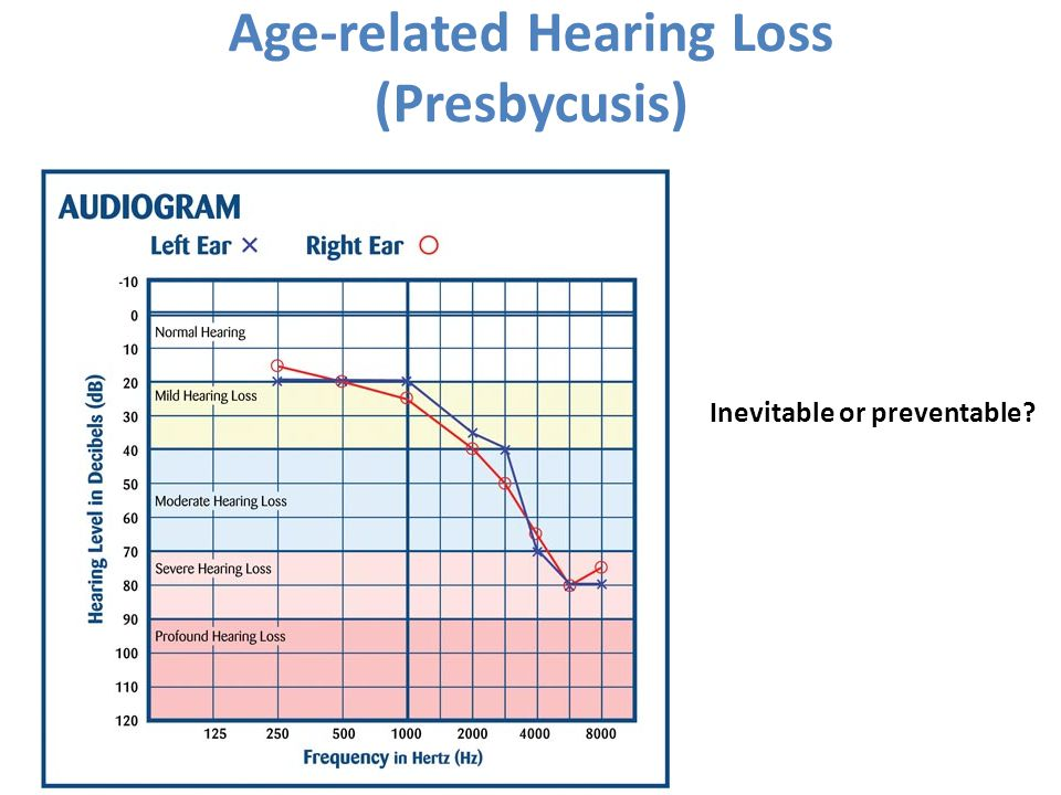 Age-related Hearing Loss (Presbycusis)