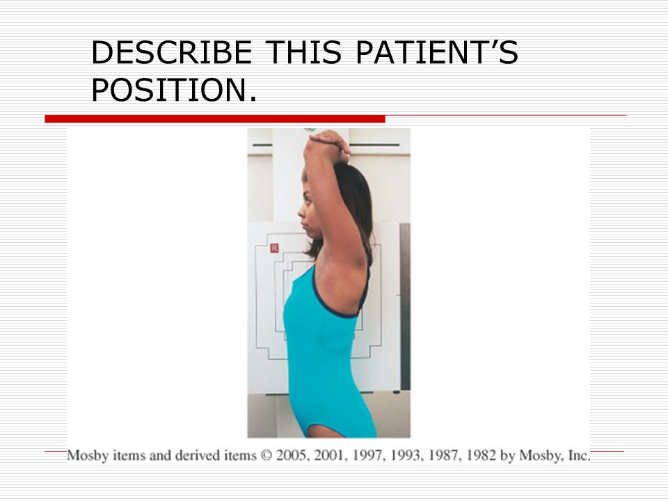 DESCRIBE THIS PATIENT'S POSITION.