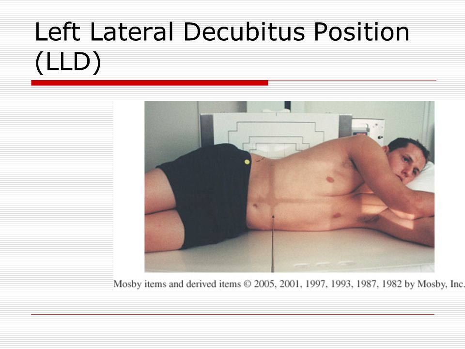 Left Lateral Decubitus Position (LLD)