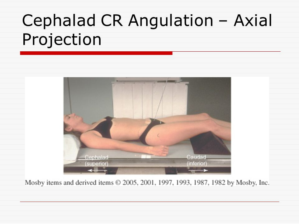Cephalad CR Angulation – Axial Projection