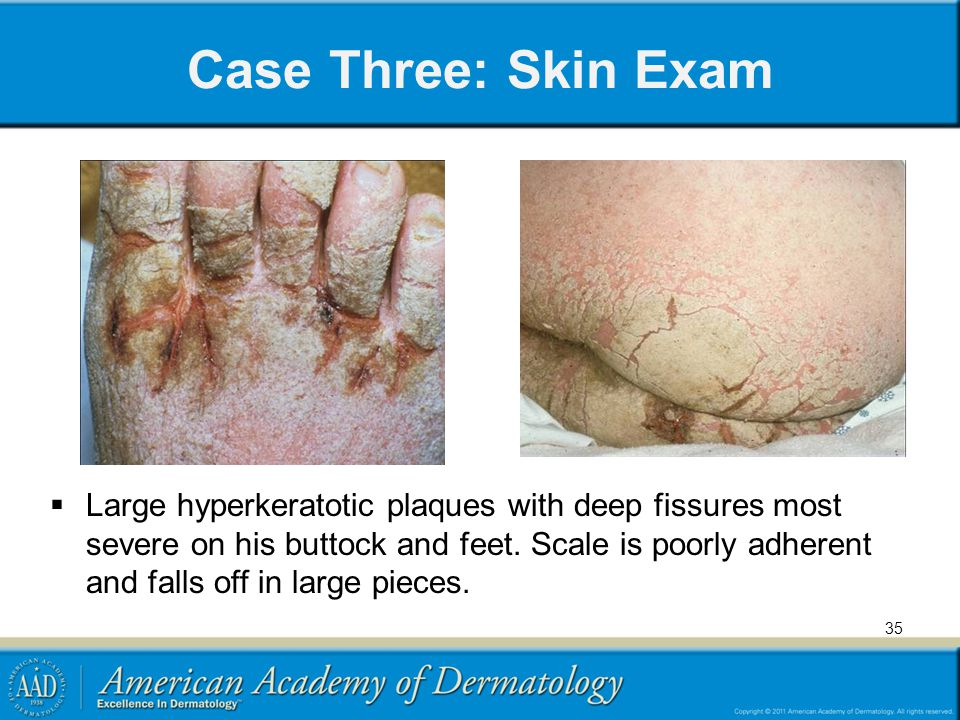 Medical Student Core Curriculum In Dermatology - ppt video