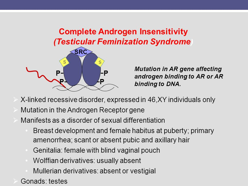 Complete Androgen Insensitivity (Testicular Feminization Syndrome)