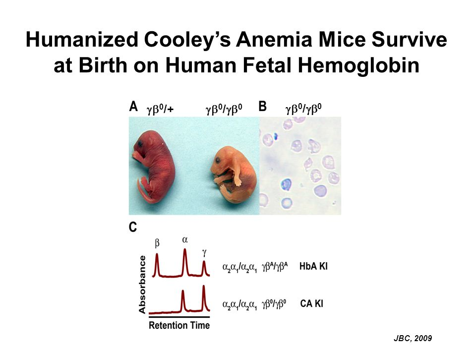 Humanized Cooley's Anemia Mice Survive at Birth on Human Fetal Hemoglobin