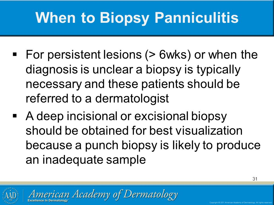 When to Biopsy Panniculitis
