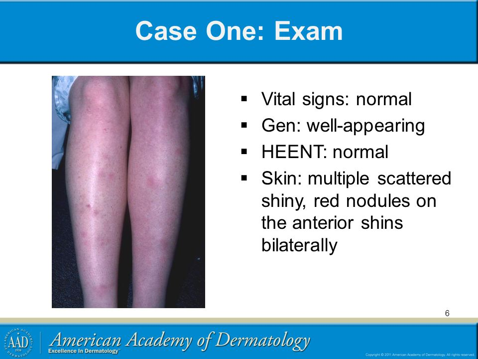 Case One: Exam Vital signs: normal Gen: well-appearing HEENT: normal