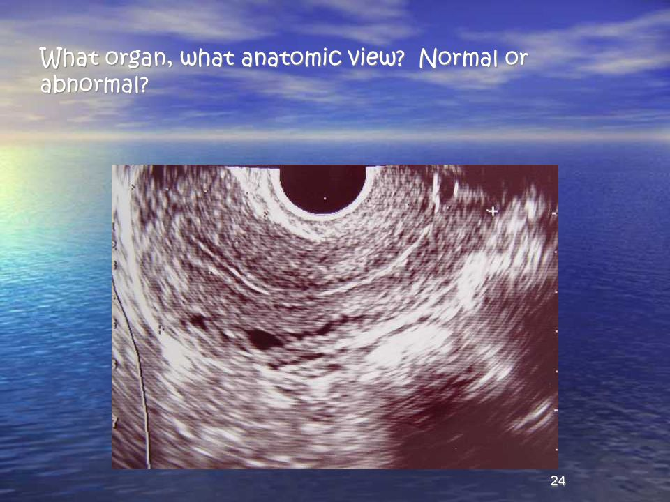 What organ, what anatomic view Normal or abnormal
