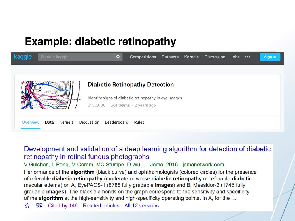 Diabetic retinopathy detection on Titan GPUs - ppt download