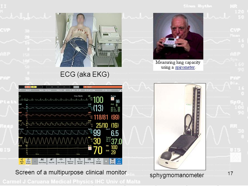 ECG (aka EKG) Screen of a multipurpose clinical monitor