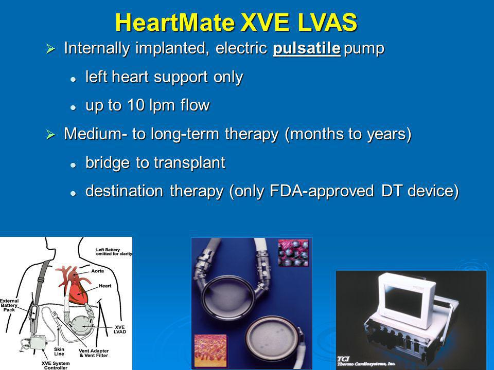 HeartMate XVE LVAS Internally implanted, electric pulsatile pump