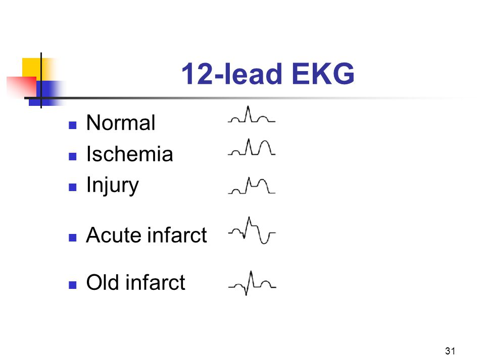 12-lead EKG Normal Ischemia Injury Acute infarct Old infarct