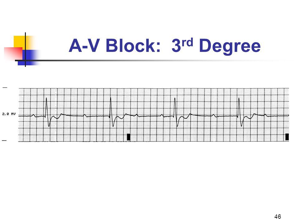 A-V Block: 3rd Degree P waves, if present, appear in a regular rhythm