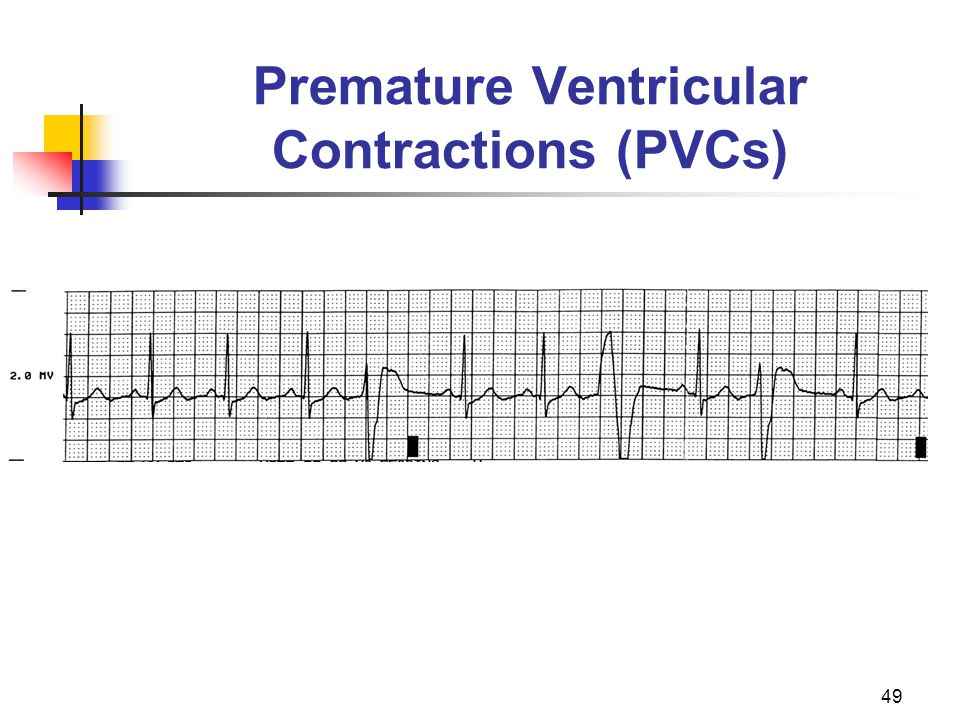 Premature Ventricular Contractions (PVCs)
