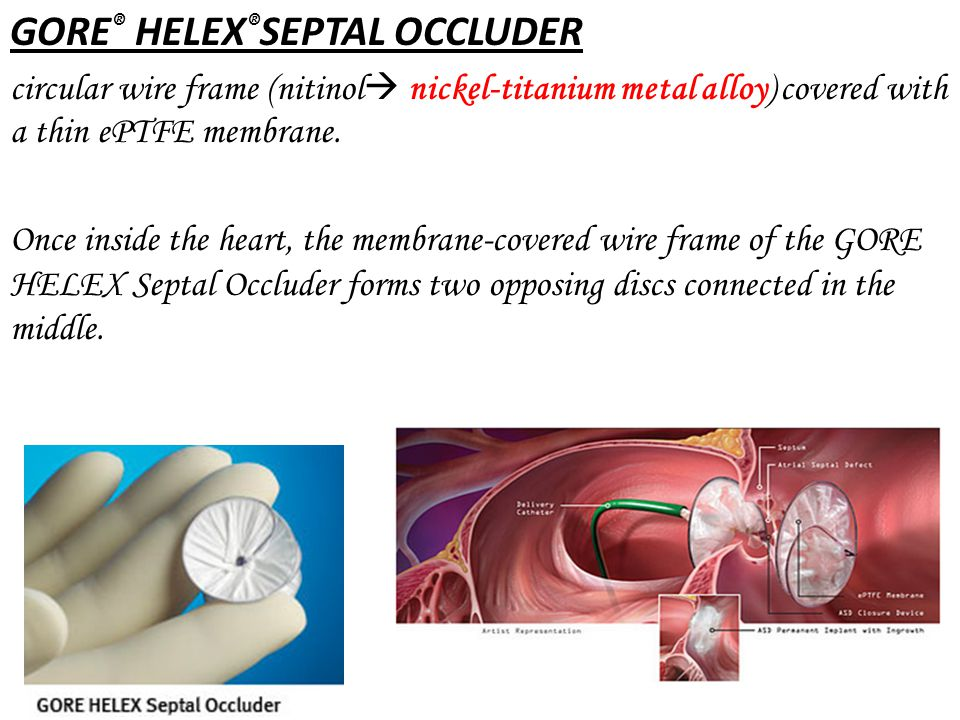 GORE® HELEX®SEPTAL OCCLUDER