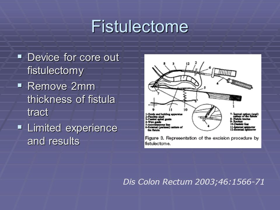 Fistulectome Device for core out fistulectomy