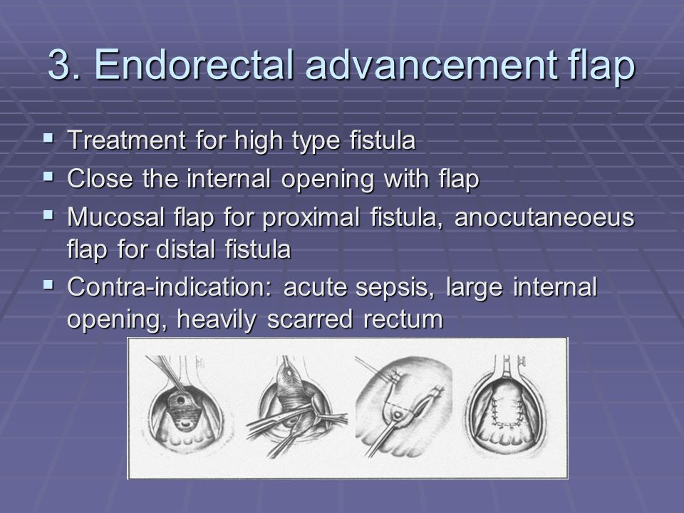 3. Endorectal advancement flap