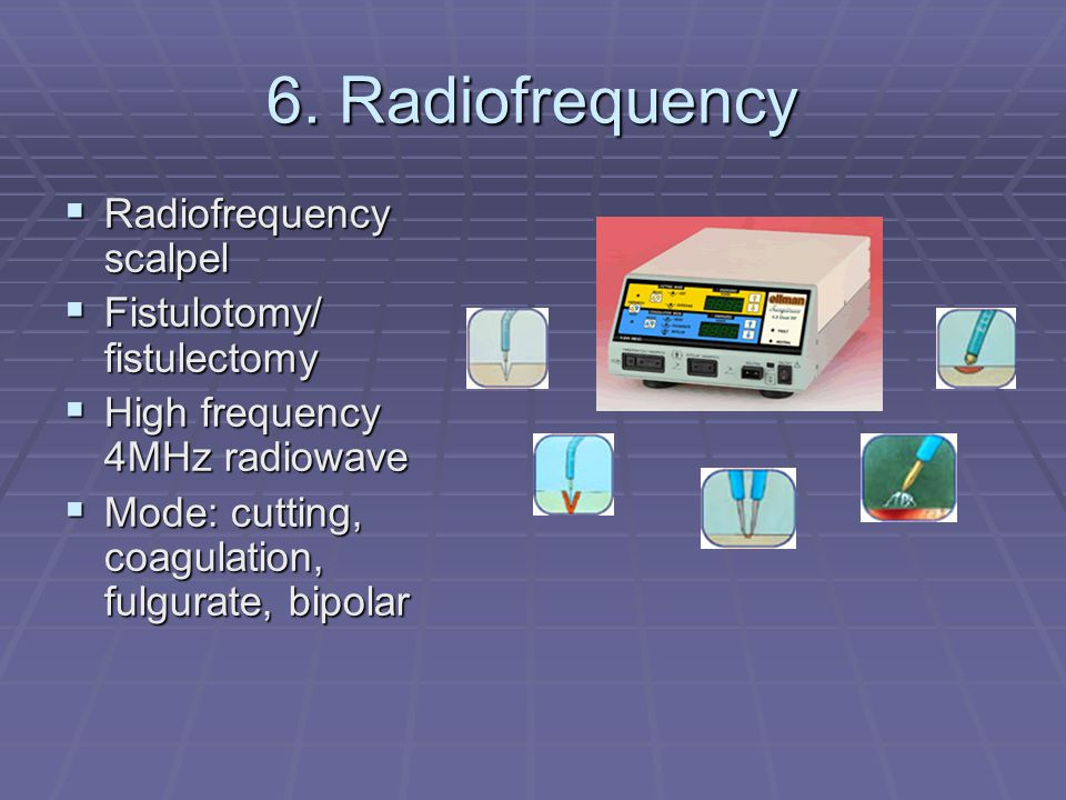 6. Radiofrequency Radiofrequency scalpel Fistulotomy/ fistulectomy