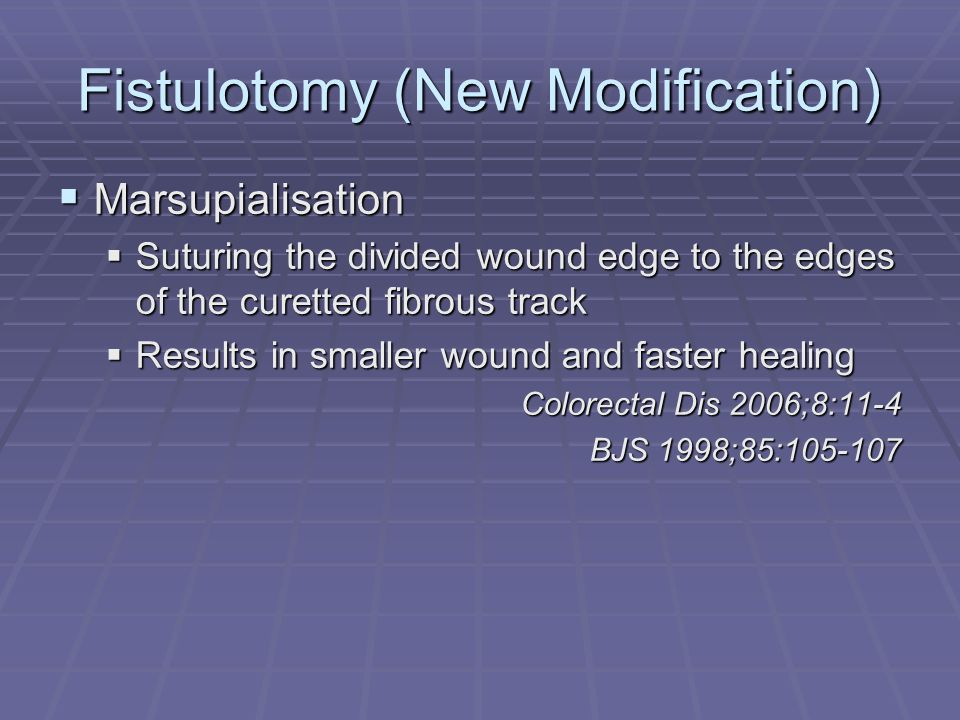 Fistulotomy (New Modification)