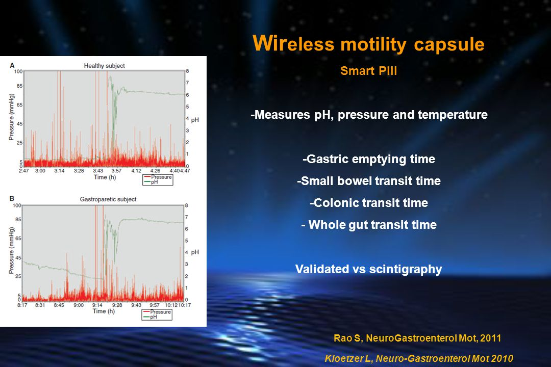 Wireless motility capsule