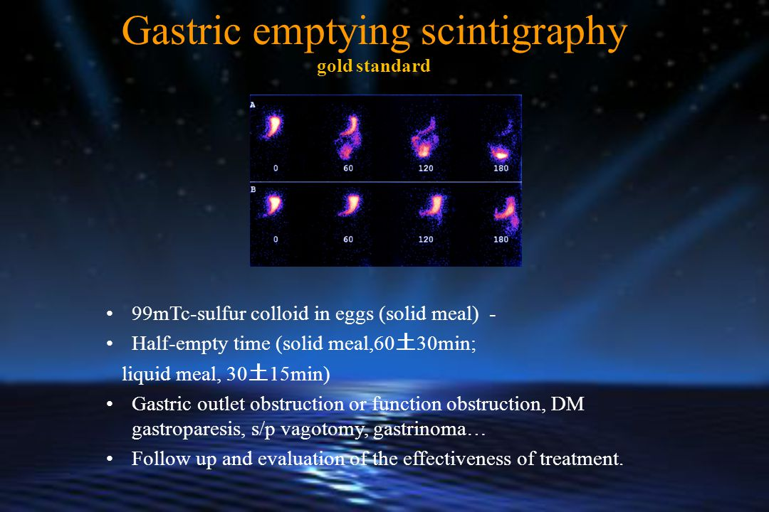 Gastric emptying scintigraphy