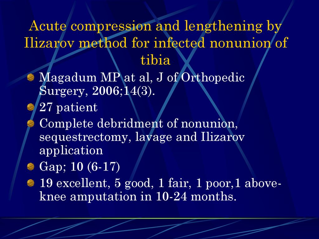 Ebrahimzadeh Mohammad H  MD - ppt download