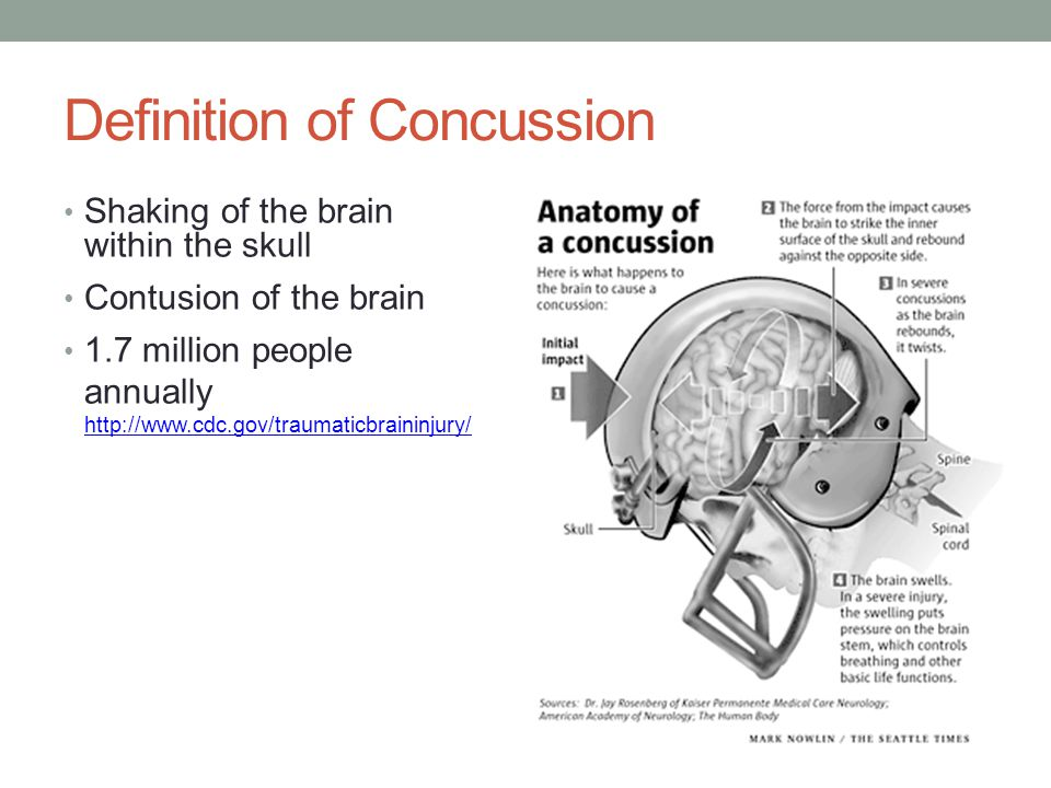 A Whack to the Side of the Head: Concussion Litigation - ppt download