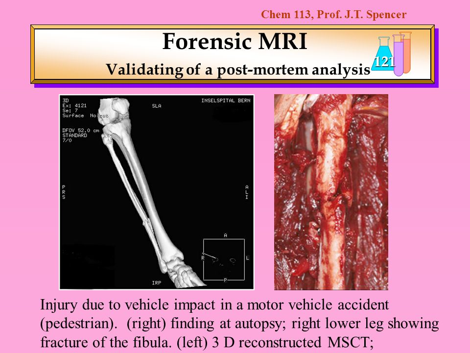 Forensic MRI Validating of a post-mortem analysis