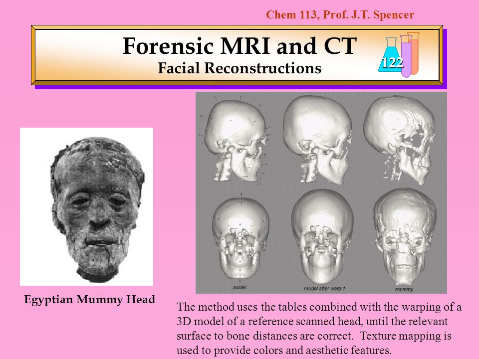 Forensic MRI and CT Facial Reconstructions