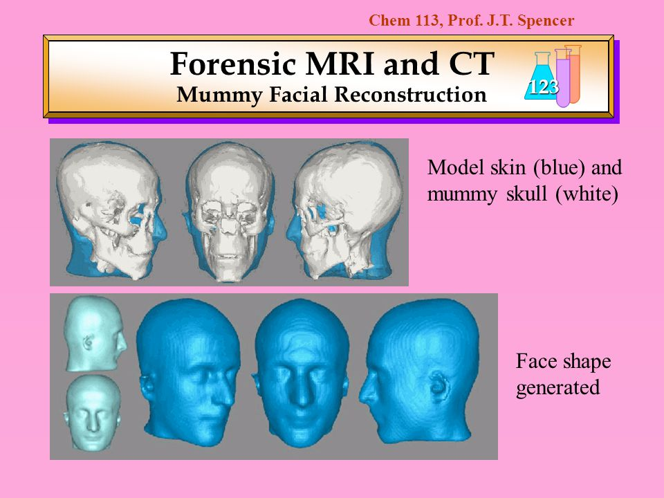 Forensic MRI and CT Mummy Facial Reconstruction