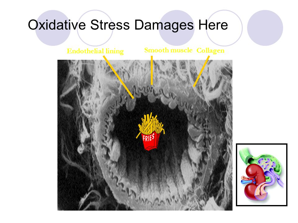 Oxidative Stress Damages Here