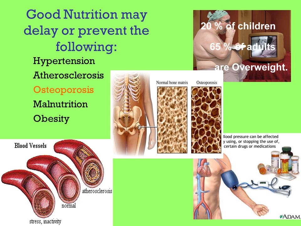 Good Nutrition may delay or prevent the following: